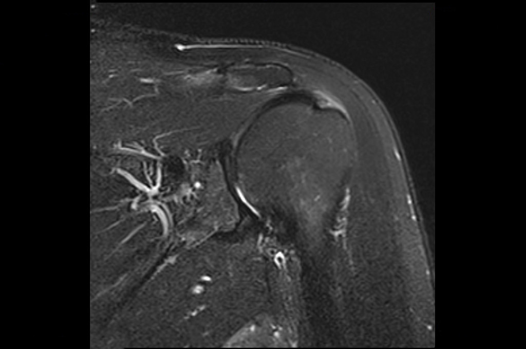 shoulder MRI your brachial neuritis claims attorney will need