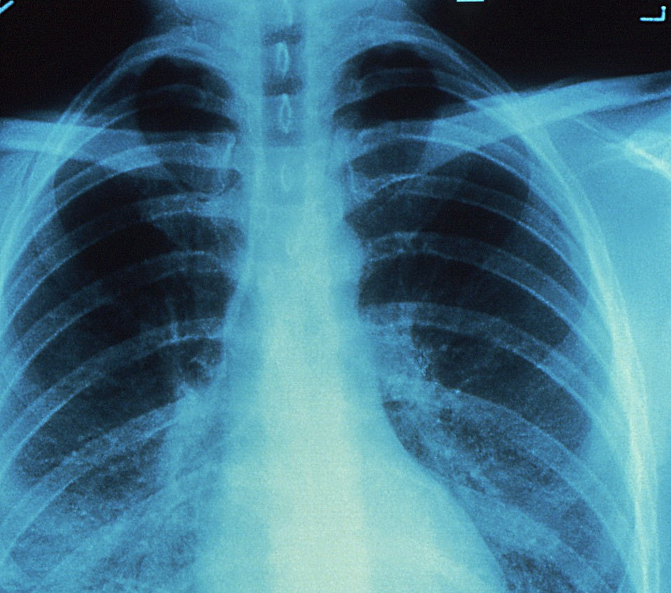 chest x-ray needed as evidence by brachial neuritis lawyer