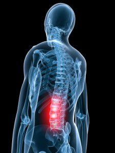 Spinal Stimulation